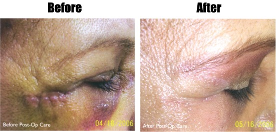 [MediRenew Before & After Photo]
