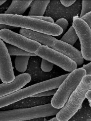 e-coli-sample.jpg